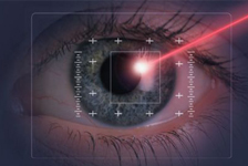 Laser Eye Treatment in Kentucky
